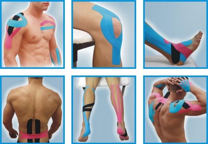 Kinesio tape anglicky, Kinezio tejp česky, odstraňuje bolest, podporuje regeneraci - koleno, loket, stehno, lýtko, rameno, záda a mnoho dalších částí vašeho těla