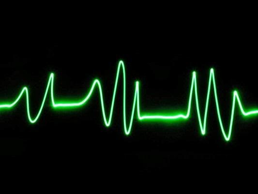Srdcový tep; graf