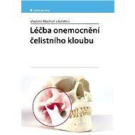 Léčba onemocnění čelistního kloubu - Elektronická kniha