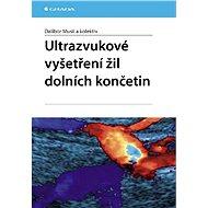 Ultrazvukové vyšetření žil dolních končetin - E-kniha