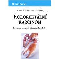 Kolorektální karcinom - Elektronická kniha