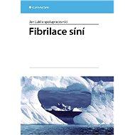 Fibrilace síní - E-kniha