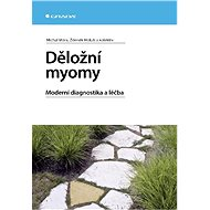 Děložní myomy - Elektronická kniha