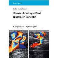 Ultrazvukové vyšetření žil dolních končetin - Elektronická kniha