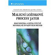 Maligní ložiskové procesy jater - Elektronická kniha