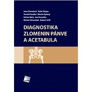 Diagnostika zlomenin pánve a acetabula - Elektronická kniha