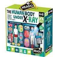 Ľudské telo pod röntgenom