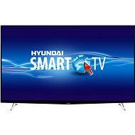 "65"" Hyundai ULV 65TS300 SMART - Televízor"