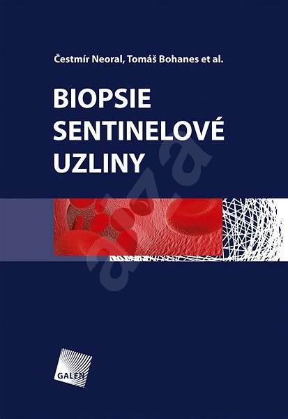 Biopsie sentinelové uzliny - Čestmír Neoral  Tomáš Bohanes